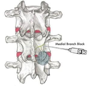 Medial  Branch Block