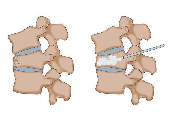 Percutaneous Kyphoplasty